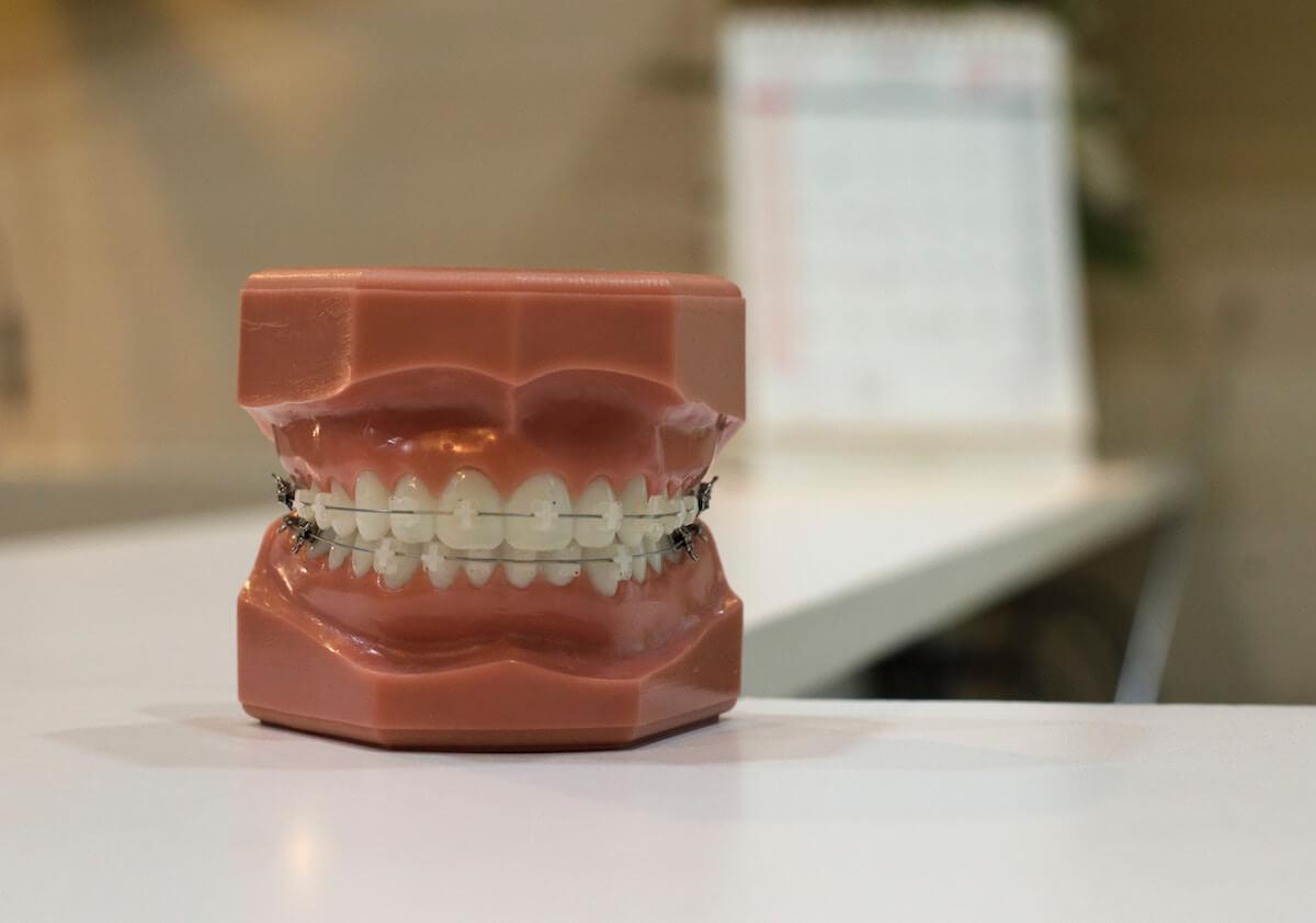 Zähneknirschen Folgen